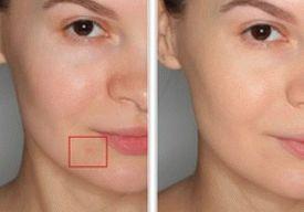 hide-acne